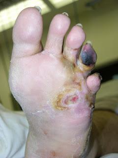 ARSENICUMALBUMulcers Arsenicum album, Ulcers, look gangrenous.