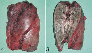 lunggangrene Gangrene of the lung