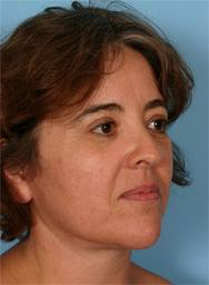 najafemale Anne schadde takes a case -Periodontosis - Naja tripudians
