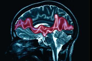 epilepsyimage_1 Roger Morrison takes a case - Epilepsy