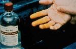 Nitricumacidum Nitricum acidum in Constipation