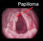 papilloma Thuja Cures Laryngeal Papilloma.