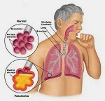 pneumoniapatho The homoeopathic treatment of pneumonia