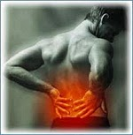 backache Lumbar Disc Prolapse can be cured with Homeopathic Medicine?