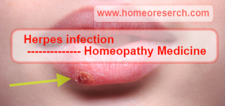 Homeopathic medicine for Herpes