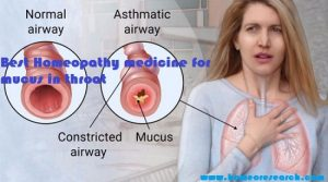 best-homeopathy-medicine-for-mucus-in-throat-300x167 best homeopathy medicine for mucus in throat