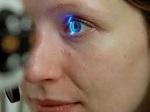 glaucoma3 glaucoma3