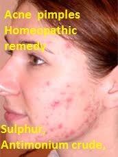 acnehomeopathicremedytreatment Homeopathic Remedies Treatment does cure Acne Pimples?