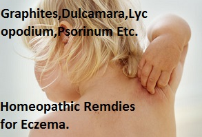 eczemahomeopathicremediestreatment Top Tips for Eczema Skin Care and Maintaining Healthy Skin Overall