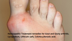 gouthomoeopathicremedies Gout Homeopathic Remedies treatment for Gouty arthritis