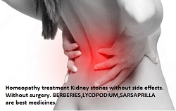 homeopathic remedies for kidney stone