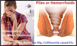 woman-suffer-piles-homeopathy Homeopathic Remedies for Hemorrhoids or Piles without Surgery