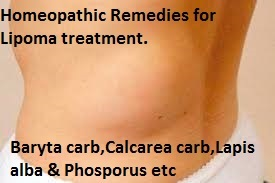 homeopathic-remedy-for-lipoma Homeopathic Remedy for Lipoma Treatment and Cure