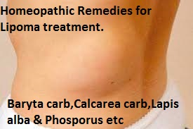 Homeopathic Remedy for Lipoma Treatment and Cure