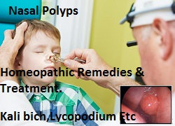 nasal-polyphomepathic-remedies Homeopathic Remedy for Nasal Polyps removal without surgery