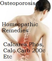 osteoporosis-homeopathy Homeopathy Medicine for Calcium Deficiency - Osteoporosis