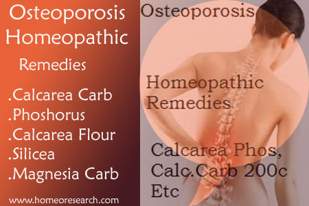 Osteoporosis Homeopathic Remedies