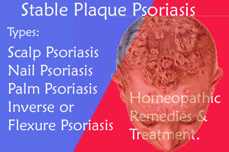 Plaque Psoriasis homeopathy