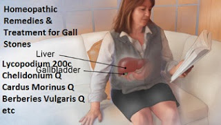 best homeopathic medicine to dissolve gallstones