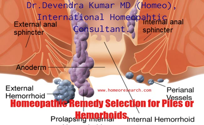 Homeopathic Medicine for piles Remedy Finder - Dr Devendra