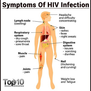 hiv-symptoms Homeopathy Medicine for A.I.D.S.Acquired Immune Deficiency Syndrome