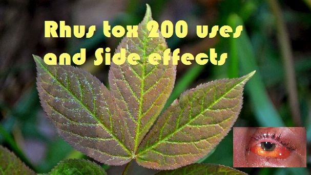 Rhus tox 200 uses and Side effects