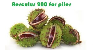 Aesculus-200-for-Piles-300x161 Aesculus 200 for Piles Treatment in Homeopathy