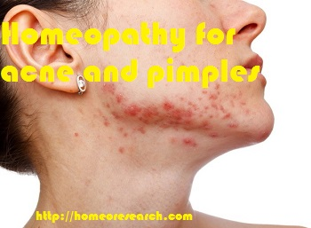Homeopathy for acne and pimples