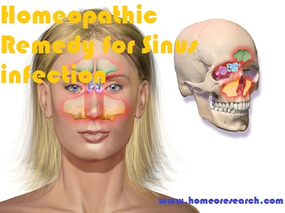 Homeopathic Remedy for Sinus infection