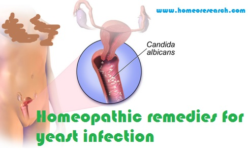 Homeopathic remedies for yeast infection