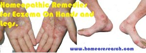 homeopathy-eczema-on-hands-and-legs-300x109 homeopathy eczema on hands and legs