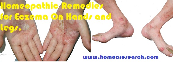 homeopathy eczema on hands and legs