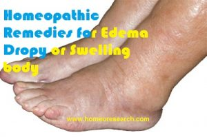 homeopathic-remedies-for-edema-300x199 homeopathic remedies for edema