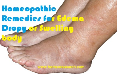 homeopathic remedies for edema