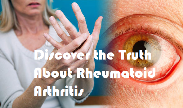 Discover the Truth About Rheumatoid Arthritis