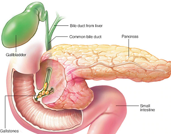 pancreatitis homeopathy