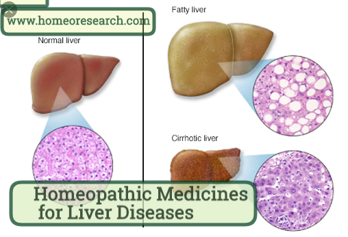 Homeopathic Medicine for liver Diseases