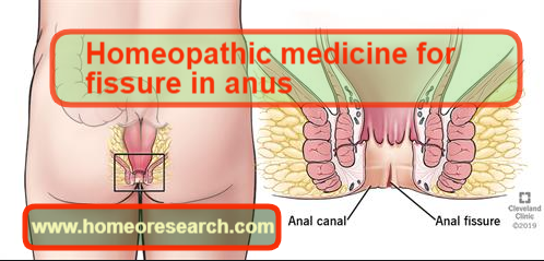 Homeopathic medicine for fissure in anus