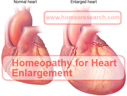 Homeopathic medicine for Heart Enlargement