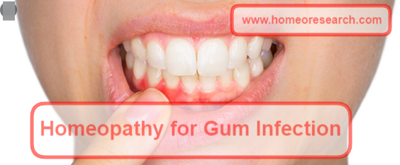 Homeopathy medicine for gum infection