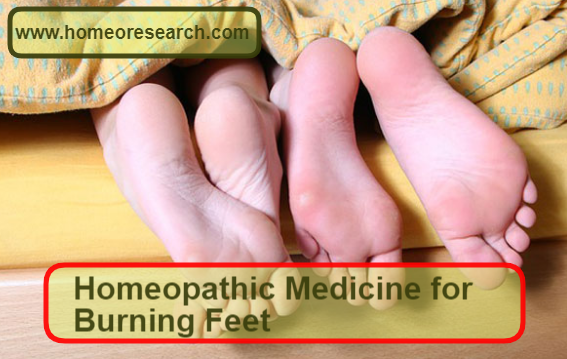 homeopathic medicine for burning feet