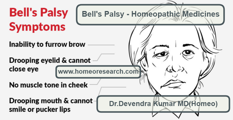 bells-palsy-homeopathy-treatment