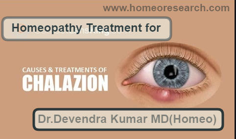 homeopathic medicines for chalazion