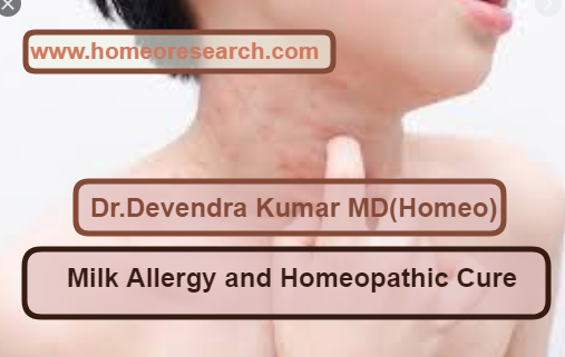milk allergy homeopathy