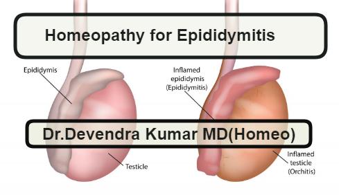 Homeopathic Medicine for Epididymitis