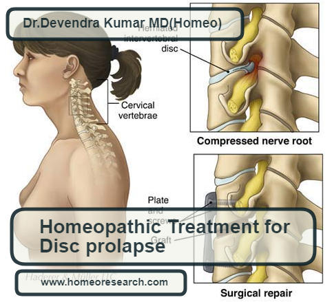 homeopathic medicines for disc prolapse