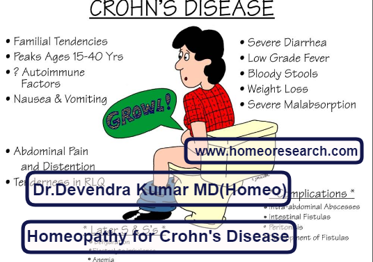 homeopathic-medicines-for-crohns-disease